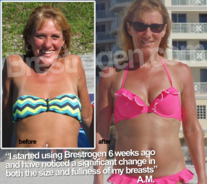 Brestrogen before after small